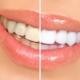 הלבנת שיניים בפתח תקווה